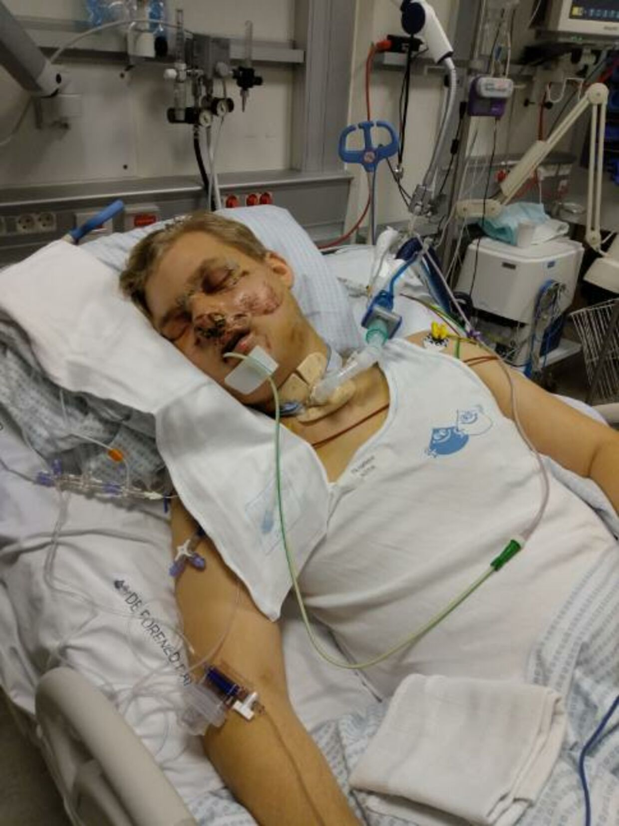 Sådan så Peter ud efter ulykken.
