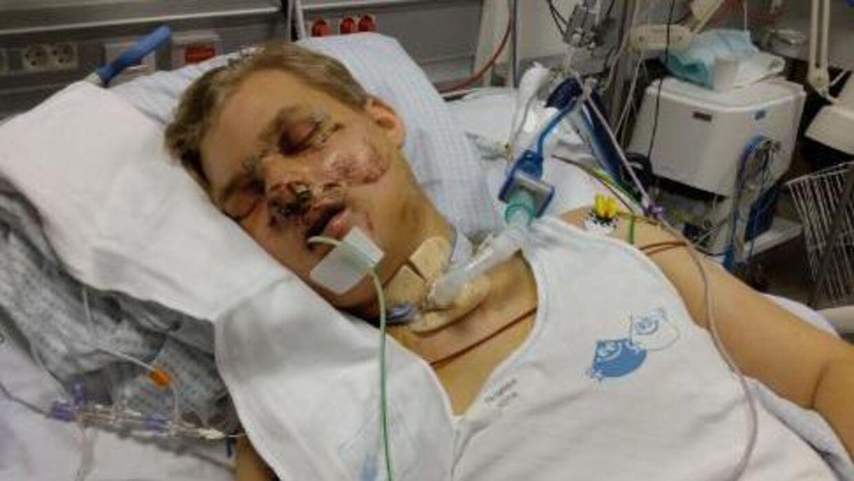 Sådan så Peter ud efter ulykken