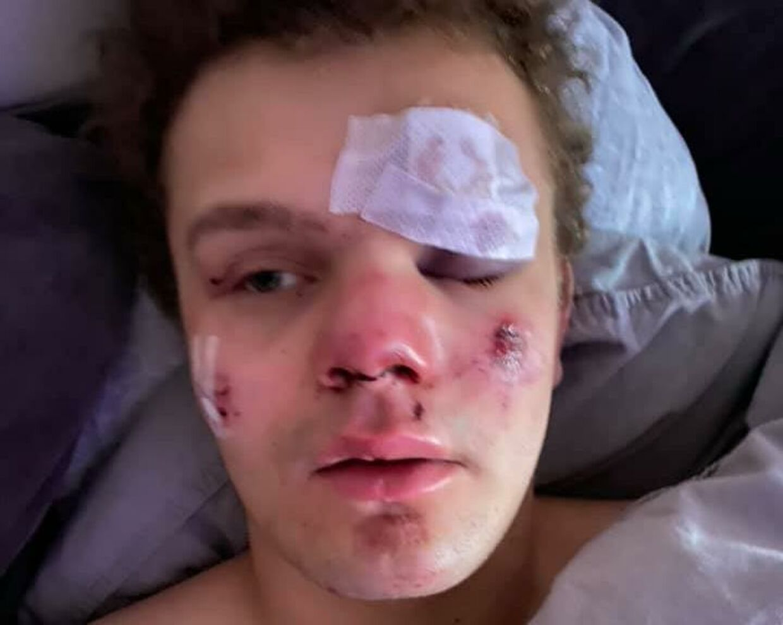 Sådan ser Lauritz Lindboe Wind ud, efter at han umotiveret blev overfaldet fredag aften i Gothersgade i København.