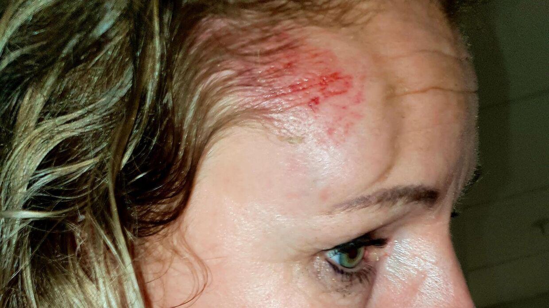 Rosa Lina Kailuweit som hun så ud lige efter overfaldet.