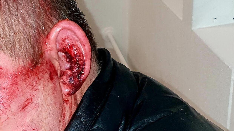 Rosas kæreste slap fra overfaldet med et blodigt øre.