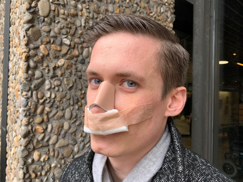 25-årige Lasse Leisner på Rigshospitalet, efter han har fået sat sin næse på plads.
