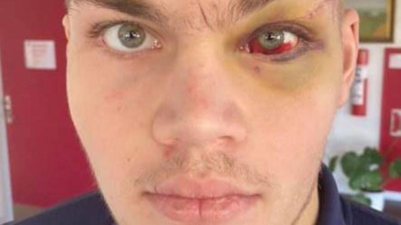 Offeret for den brutale vold har tidligere fortalt B.T. om hændelsesforløbet som han oplevede det. (Privatfoto)