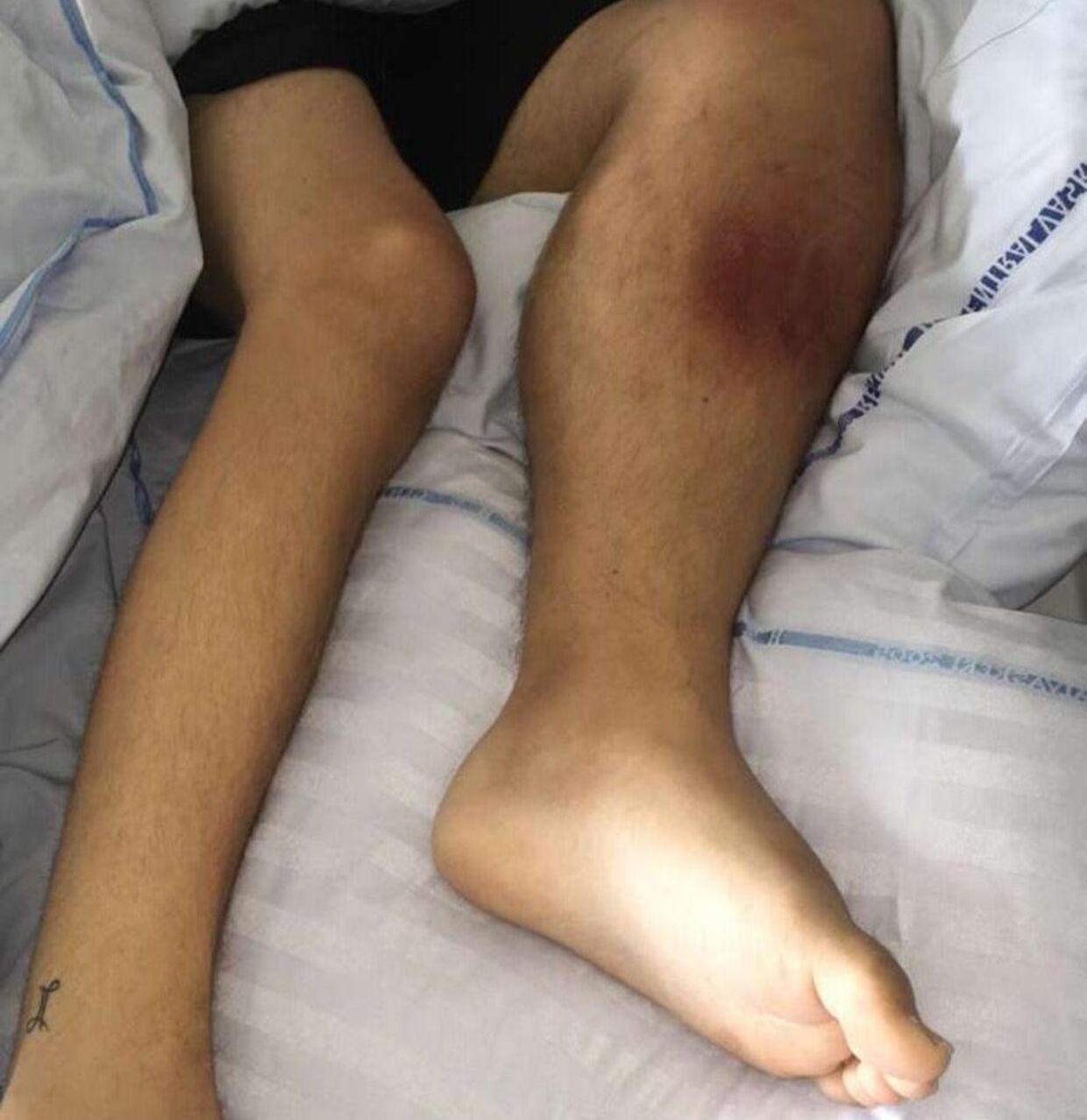 Rasmus' ben er hævet og gør ondt, da han beslutter at opsøge sin praktiserende læge. Det viser sig at være kræft. Foto: Privat.