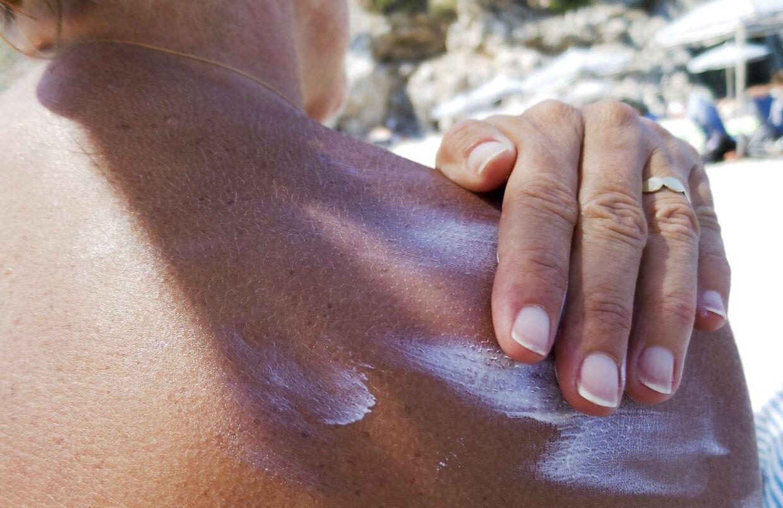 Kvinde smører solcreme på sin ryg på stranden på den græske ø Karpathos søndag den 21. juli 2019