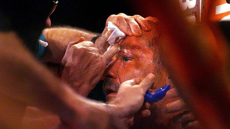Brian Nielsen fik en grim øjenskade tilbage i 2001 i kampen mod Mike Tyson.