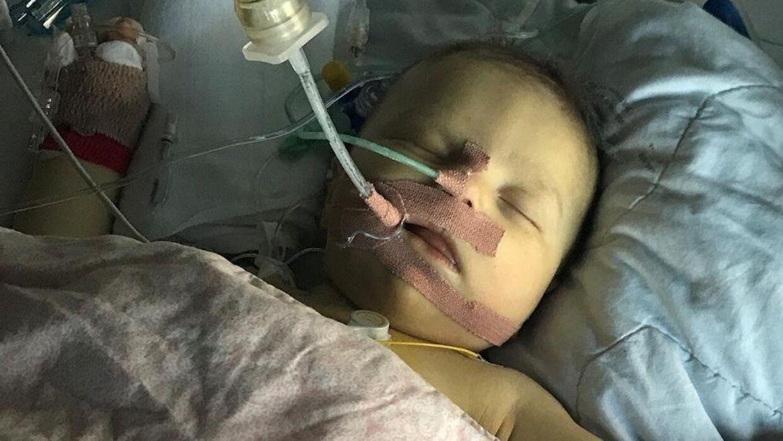 Før transplantationen blev Cleo opereret for at se, om man kunne etablere et galdeafløb fra lever til tarm. Men operationen var ikke nok til at redde Cleos lever, og derfor skulle hun transplanteres. Foto: Privat.