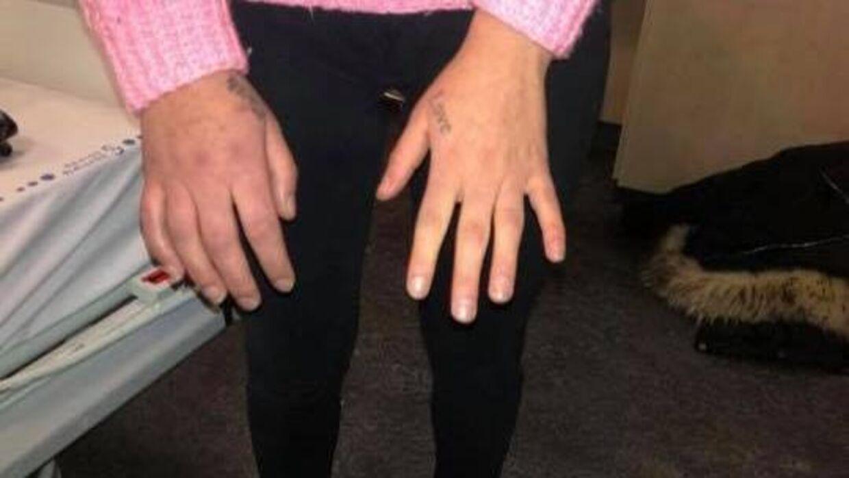 Michelle Brauners hånd er også voldsomt hævet.