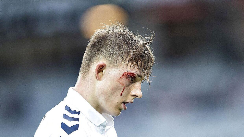 AGF's Magnus Kaastrup fik en blodig flænge over øjet i Alka Superliga gruppespilskampen mellem AGF og Hobro IK på Ceres Park i Aarhus , 23.april 2018.. (Foto: Henning Bagger/Ritzau Scanpix)
