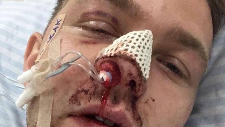 Andreas efter overfaldet.