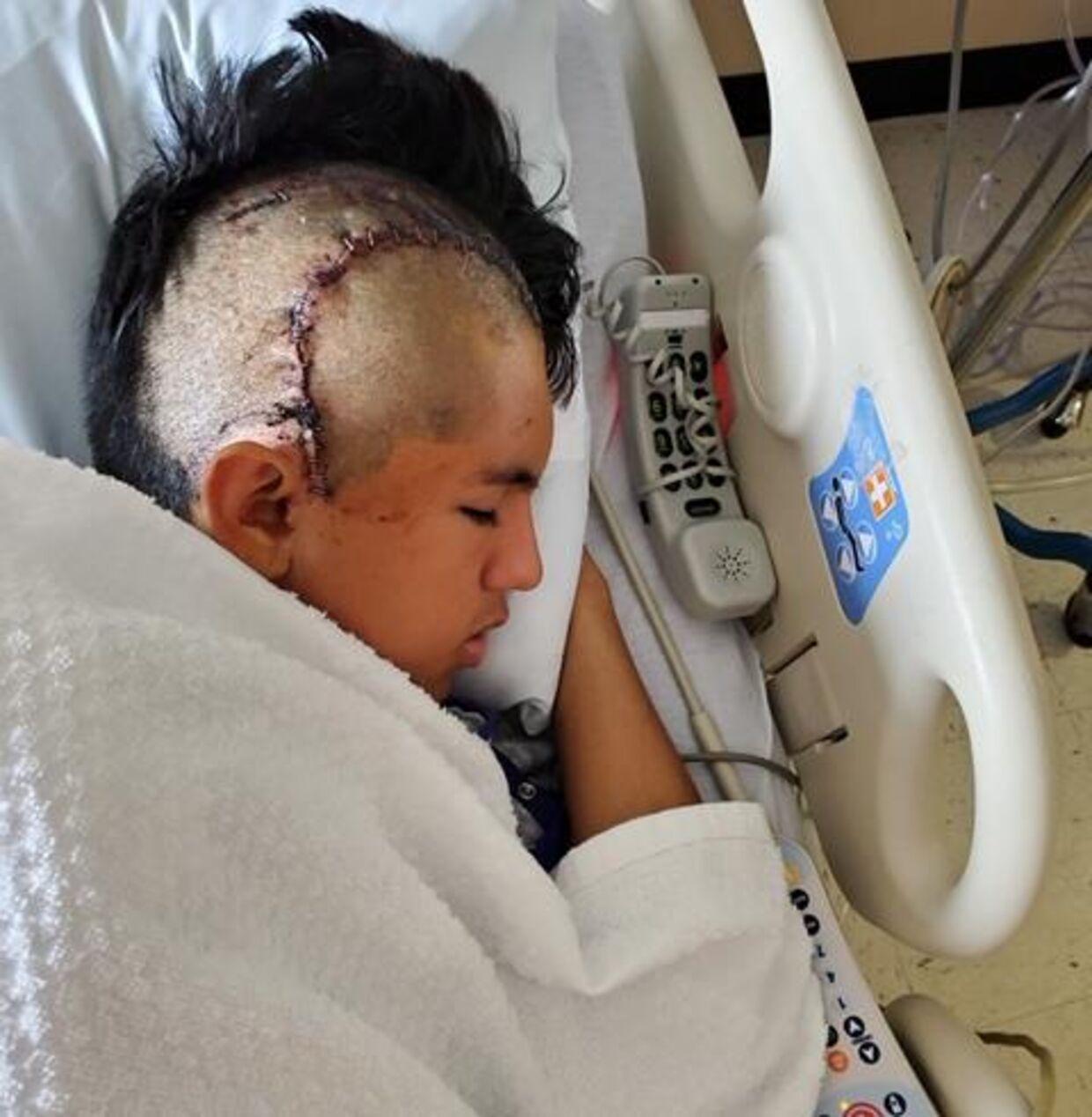 David Peralta her fotograferet i sin sygeseng efter overfaldet.