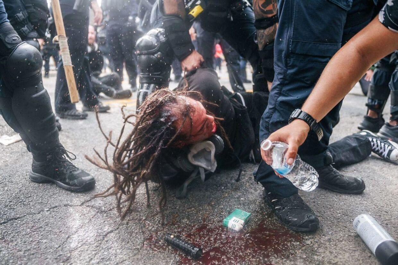 En demostrant er kommet slemt til skade efter kampe med politi.
