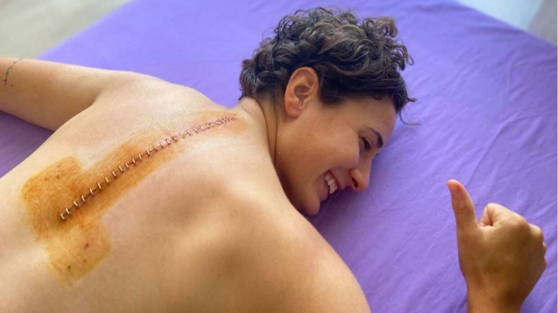 Ana Carrasco efter operationen.