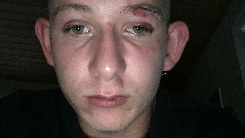 Patrick Christiansen tog et billede af sig selv, umiddelbart efter at han var blevet slået ned.