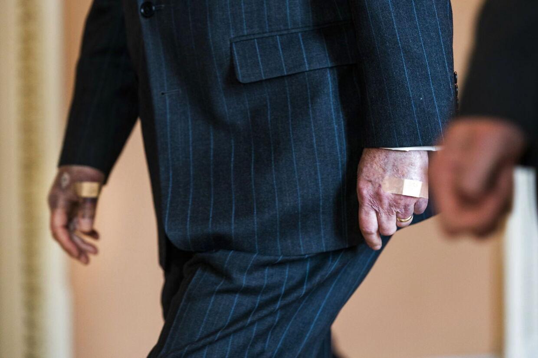 Journalister spurgte Mitch McConnell, om han havde helbredsproblemer, da han i denne uge viste sig i Washington med blå hænder med plaster.