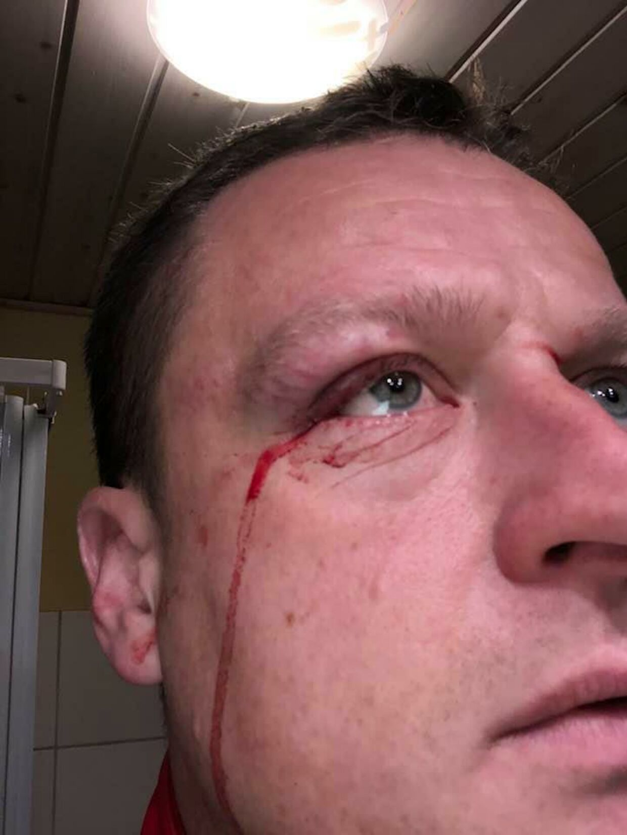 38-årige Henrik Kring måtte en tur på skadestuen, da han med høj fart var kørt ind i den udspændte nylonsnor på sin cykel.