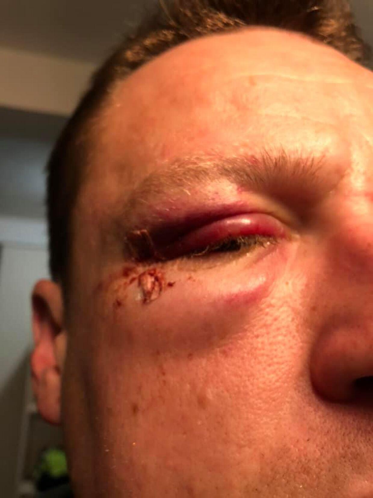 I dag kan Henrik Kring ikke kigge ud af sit højre øje, og han har kraftig hovedpige og skal en tur til fysioterapeuten med sin ømme skulder.