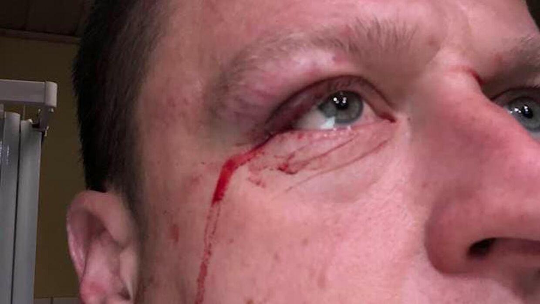 38-årige Henrik Kring måtte en tur på skadestuen, da han med høj fart på sin cykel var kørt ind i den udspændte nylonsnor.