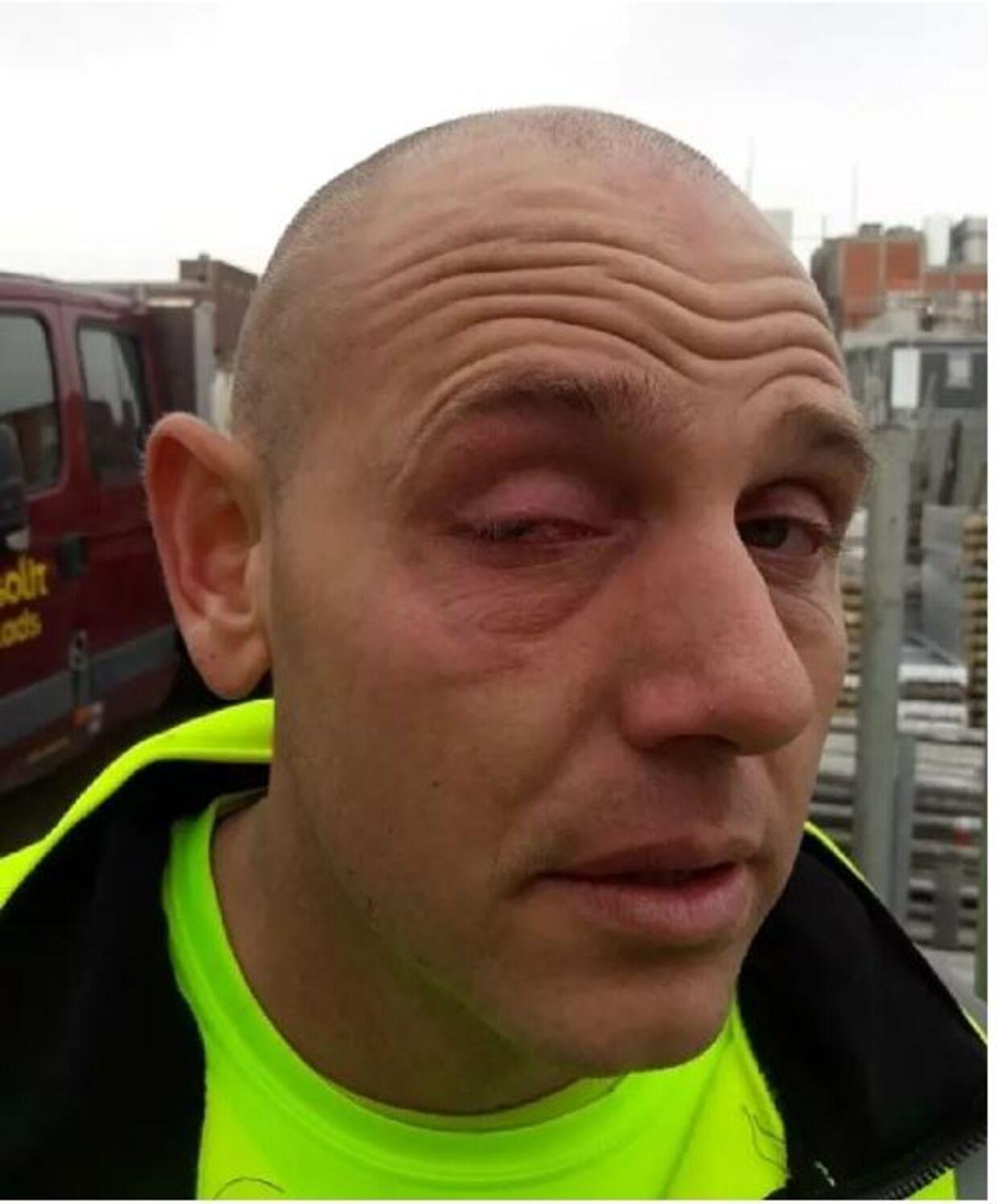 Ulrik Schwartz efter ulykken