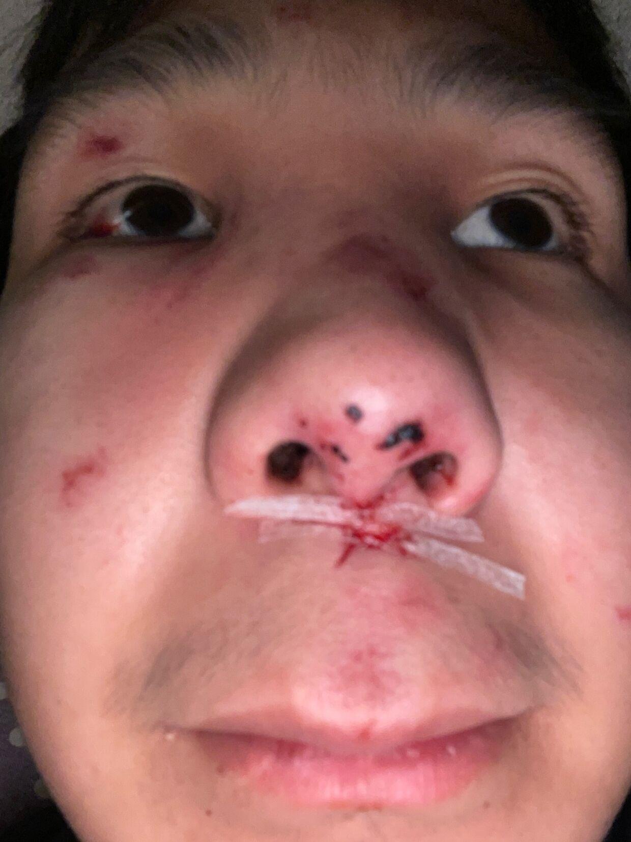 Såret under næsen er blevet ved med at bløde siden overfaldet.