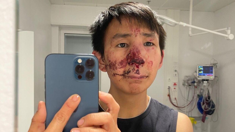 Jonarsinnguaq Arqe tog et billede af sig selv på skadestuen.