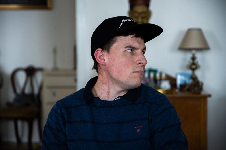 Benjamin Andresen har fået transplanteret venen, der går hele vejen fra kravebenet og op til hjernen. Nu sidder der en blodåre fra låret bag det lange ar.