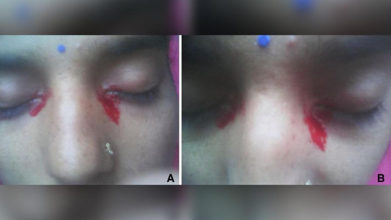En kombination af to forskellige lidelser fik en 25-årig kvinde til at græde blod fra begge hendes øjne.