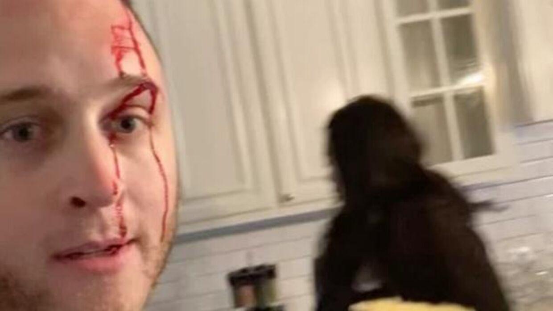 Chet Hanks under skænderiet med ekskæresten. (Foto: Screenshot)