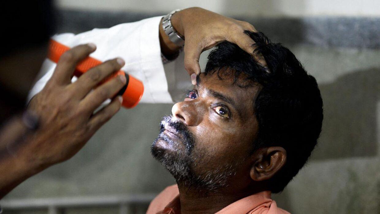 Arkivfoto. Langt de fleste patienter, som rammes af Mukormykose, er nødsaget til at få fjernet deres øje for at overleve sygdommen.
