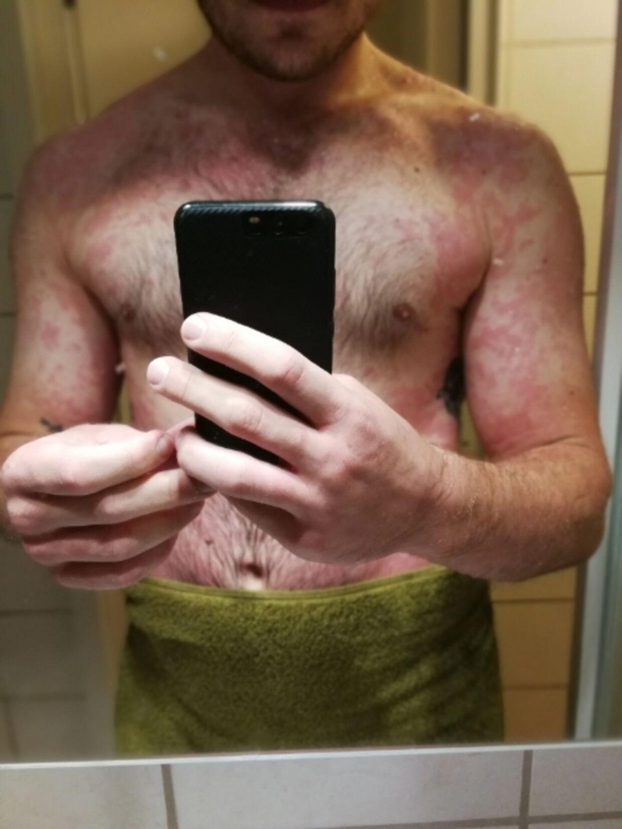 Her havde Kasper Jensen udslæt på omkring 90 procent af kroppen efter en allergisk reaktion på kød. Privatfoto.