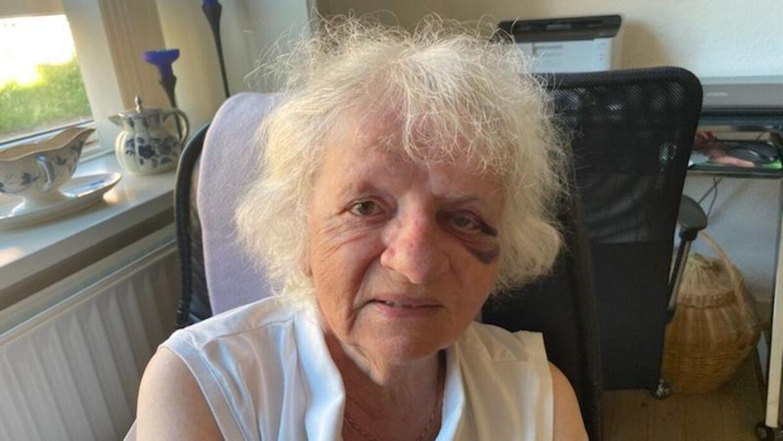 Anitas farmor efter overfaldet.
