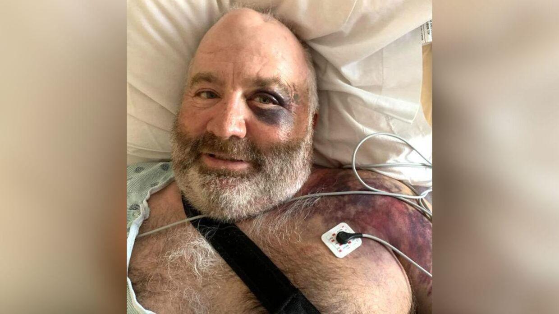 Som man kan se, er Frank reynolds hårdt såret, men i bedring. Foto: Privat