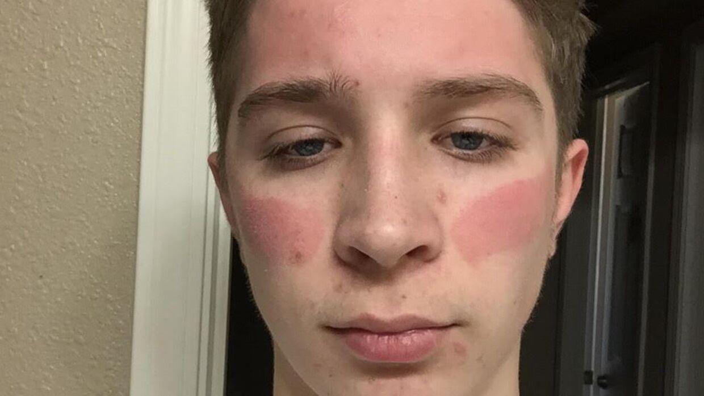 En Reddit-bruger har delt, hvordan hans ansigt pludselig så ud efter at have brugt sit Oculus-headset.