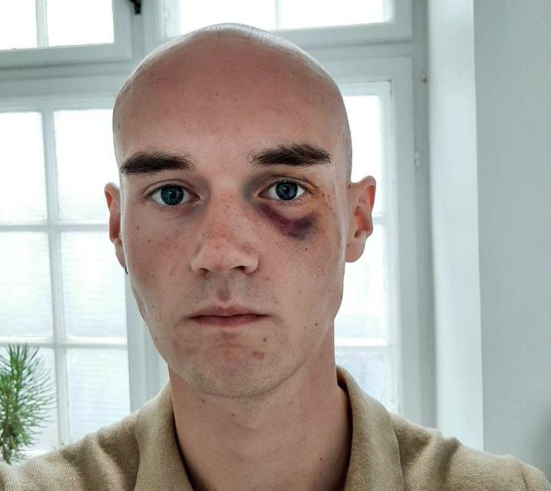 Frederik Fryland efter overfaldet.