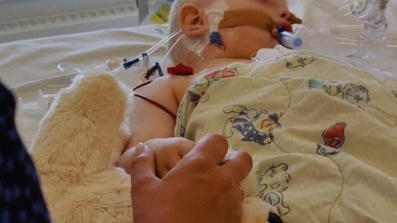 Små børn kan blive rigtig syge af RS-virus. B.T har før skrevet om den 2-årige Elias, der blev smittet med RS-virus og endte med et langt og alvorligt sygdomsforløb.