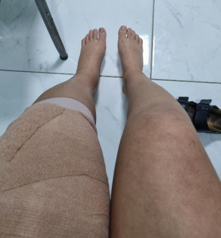 Asmas ben var meget hævet, og hun måtte opereres med stang og skruer.