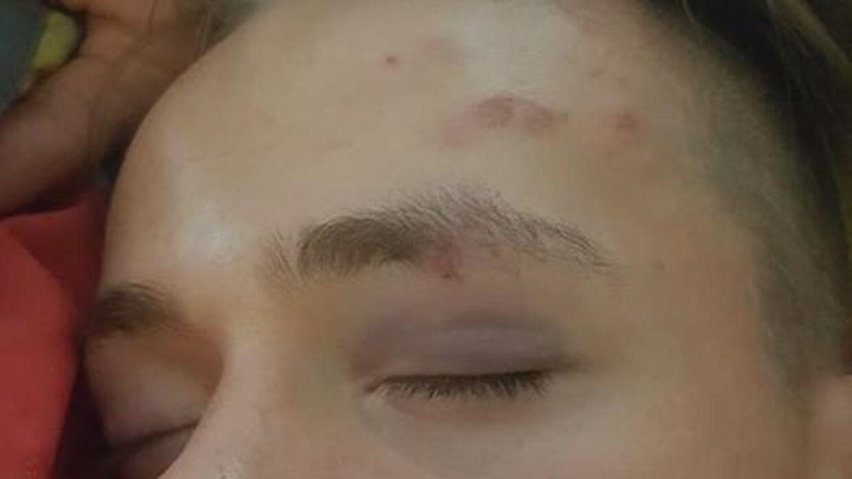 Slagene har efterladt tydelige mærker i Noah Motzfeldts ansigt.