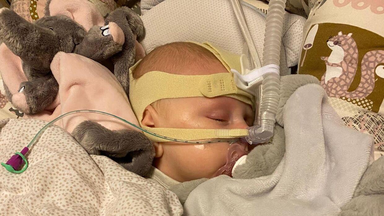 Sophia måtte både have sonde og CPAP-maske under sin indlæggelse (Privatfoto)