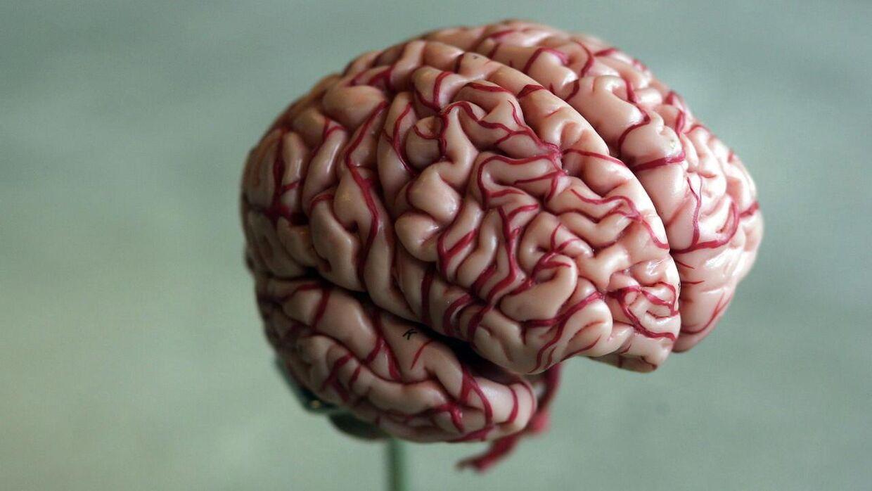 Mange hjerner er blevet skannet i forbindelse med undersøgelsen.