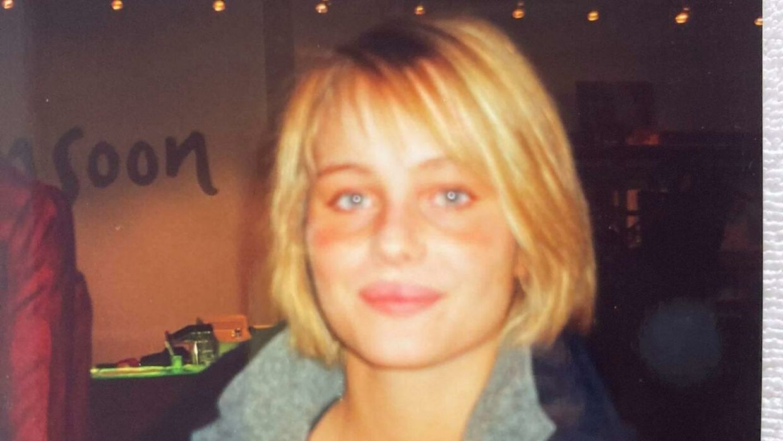 Her er Herit Helgadóttir, dengang hun havde sit eget hår. Hun var i begyndelsen af 20erne, da hun blev ramt af alopecia og mistede håret på det meste af kroppen.