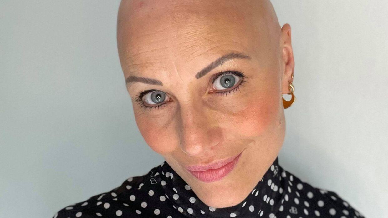 Herit Helgadóttir var 25 år, da hun tabte håret. Først bemærkede hun bare lidt skaldede pletter, men i løbet af et års tid håret væk. I dag har hun stort set kun øjenvipper tilbage.