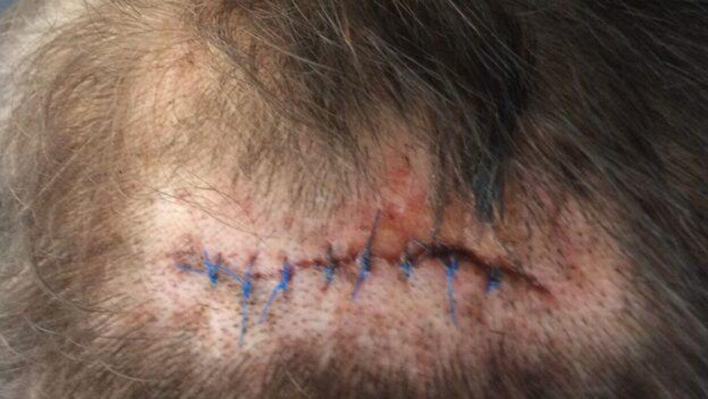 Arret i Allan Jensens kranie, efter det flækkede.