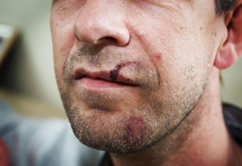 Tonni Stage har fået tre sting i overlæben og flere skræmmer i ansigtet. To af hans tænders rødder er muligvis beskadiget. Billedet er taget to dage efter overfaldet.