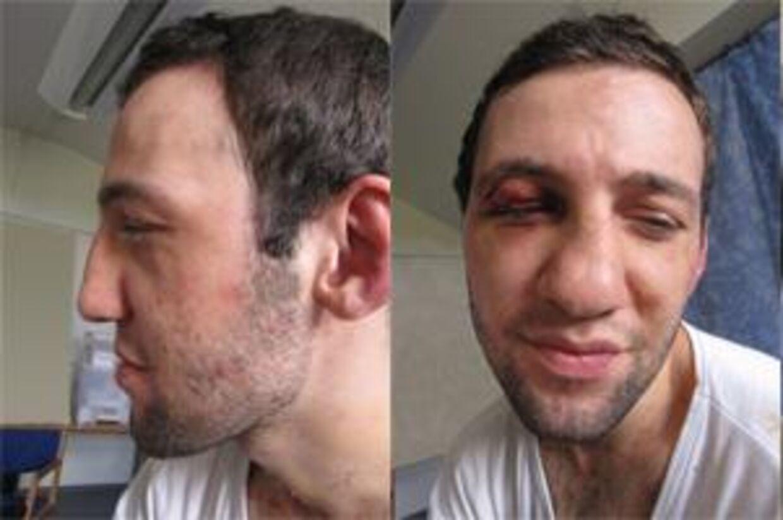Her ses bombemanden uden skader i ansigtet - arrene har politiet fotomanipuleret væk.