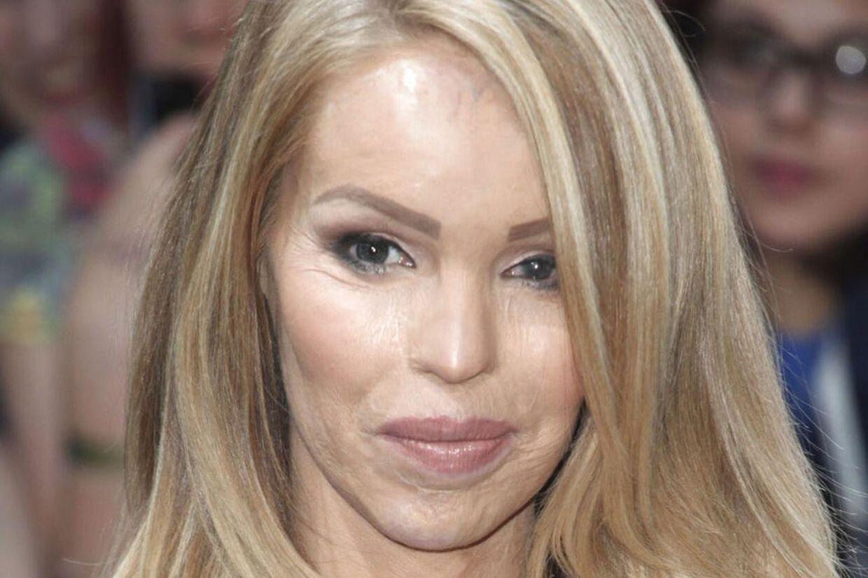 Den tidligere model Katie Piper blev i 2008 udsat for et syreangreb, som efterlod hendes hals og ansigt vansiret. Skadere efter angrebet betyder, at det er højst usikkert om Kaite Piper kan få flere børn. På billedet ses hun til en filmpremiere i London.
