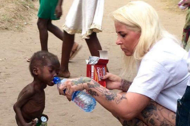 Sådan så den lille dreng, der var udsultet, dehydreret og alvorlig syg af orm, ud, da Anja Ringgren Lovèn fandt ham for lidt over en måned siden.