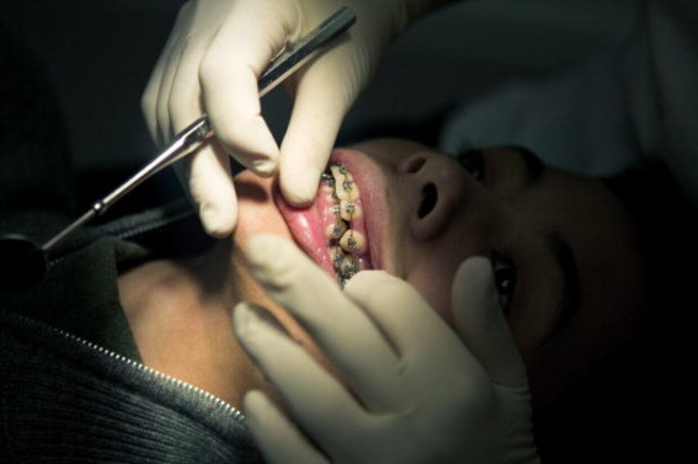 Hypnose er ved at vinde indpas i den kliniske verden af tandlæger.