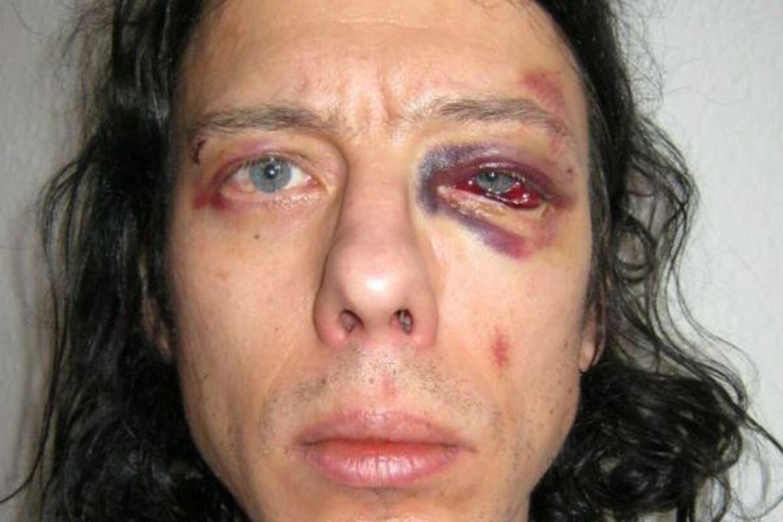 Dan Park blev 1. januar overfaldet i København