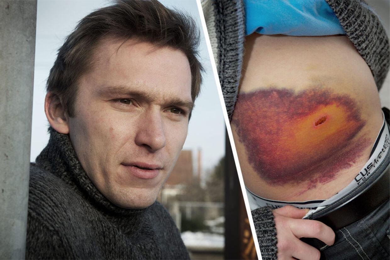 Jesper Henningsen slap fra ulykken med et deformt venstre lår, brug på den ene skulder, på bækkenet og på hofteskålen - plus en række farvestrålende blodansamlinger.