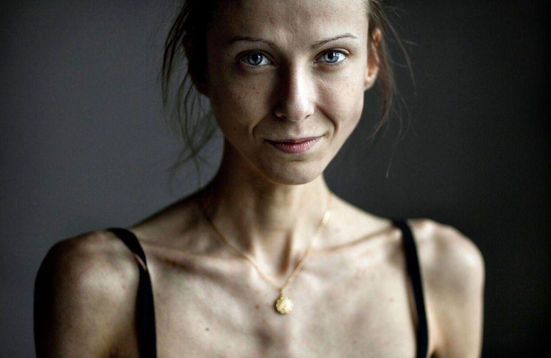 Arkivfoto: Karina er 29 år gammel og vejer blot 40 kilo.